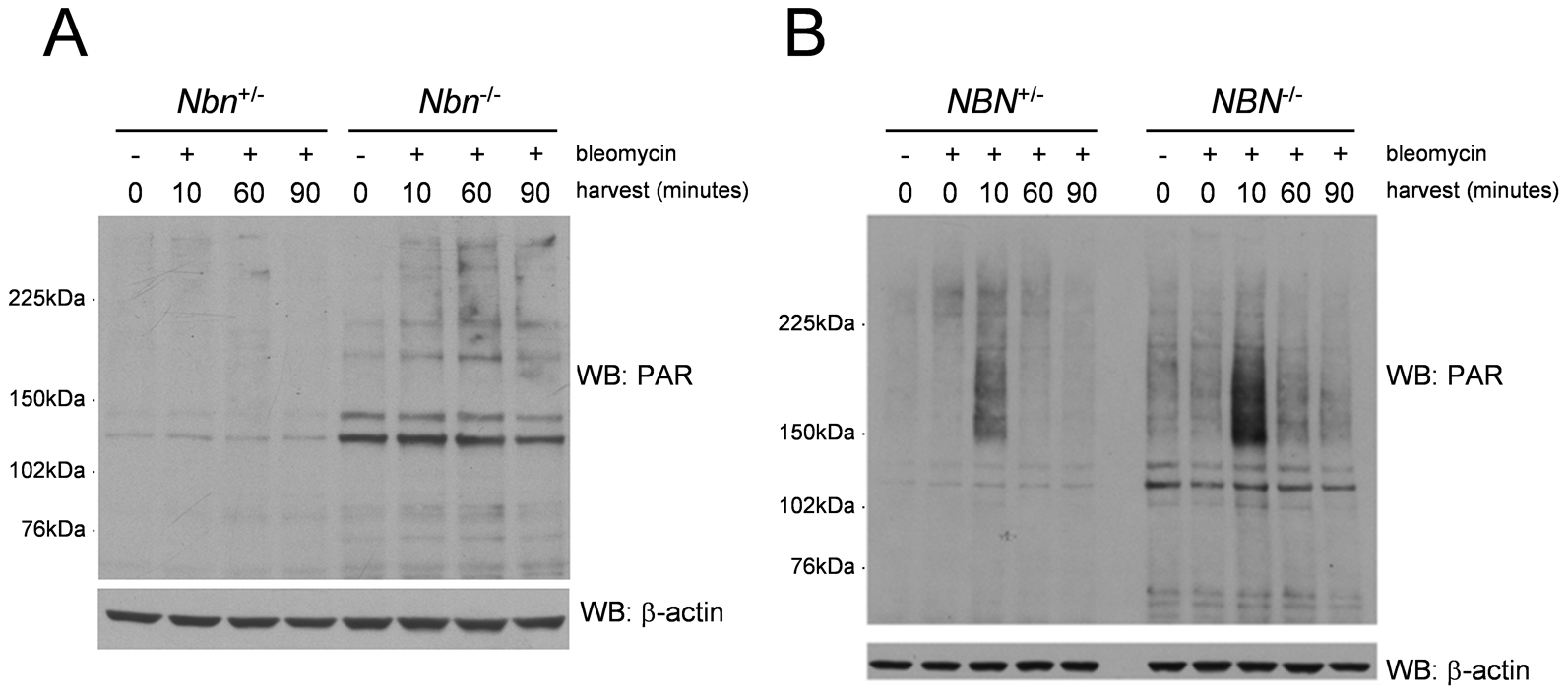 Increased PARP activity in <i>Nbn<sup>−/−</sup></i> murine fibroblasts and NBS patient fibroblasts after DNA damage.