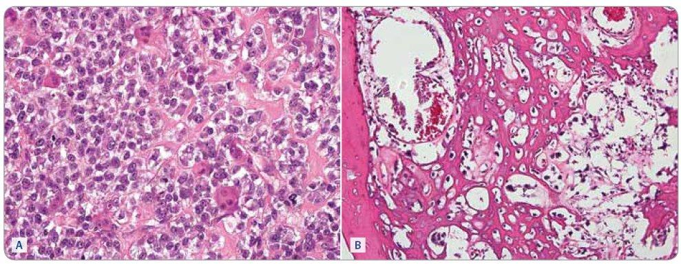 Osteosarkom, biopsie před zahájením (A) chemoterapie a po 6 cyklech léčby (B). Barvení hematoxylin a eosin, zvětšeno 400krát. (A) Nádor je silně buněčný, osteoblasty jsou velké, v tomto případě relativně uniformní, ale je patrná mitotická aktivita. v malém rozsahu je přítomna tvorba nádorového osteoidu, který je patrný jako homogenní nepravidelné pentlice mezi nádorovými buňkami v pravé části snímku. Zastiženy jsou také roztroušené nenádorové osteoklasty. (B) v nádoru převládá tvorba nádorového osteoidu, buněčnost je malá, nádorové buňky jsou však v tomto zorném poli vitální. V levé části obrázku je lamela spongiózy nenádorového původu.