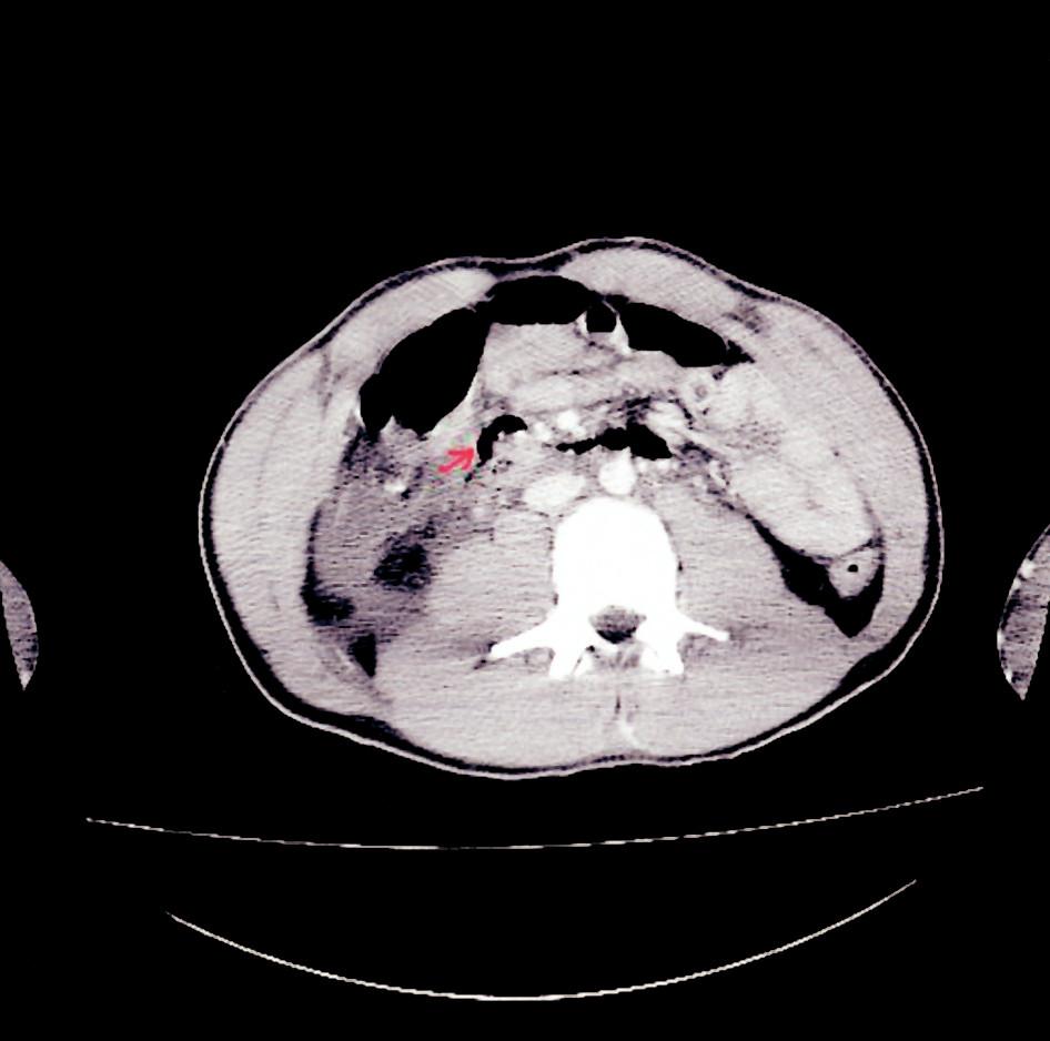 CT snímek – pneumoretroperitoneum Fig. 3. CT view – pneumoretroperitoneum