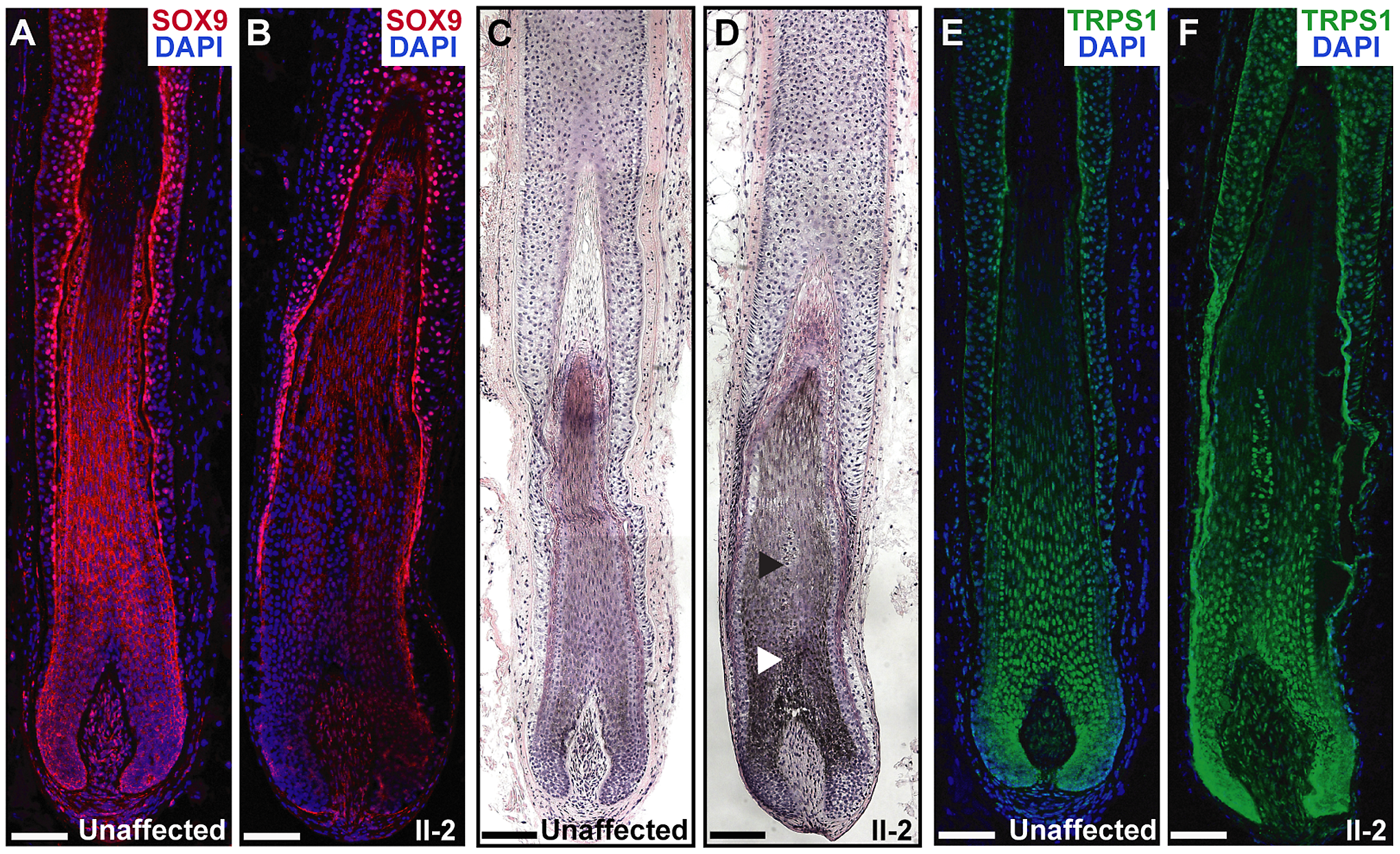Expression and histological analyses of CGHT follicles.