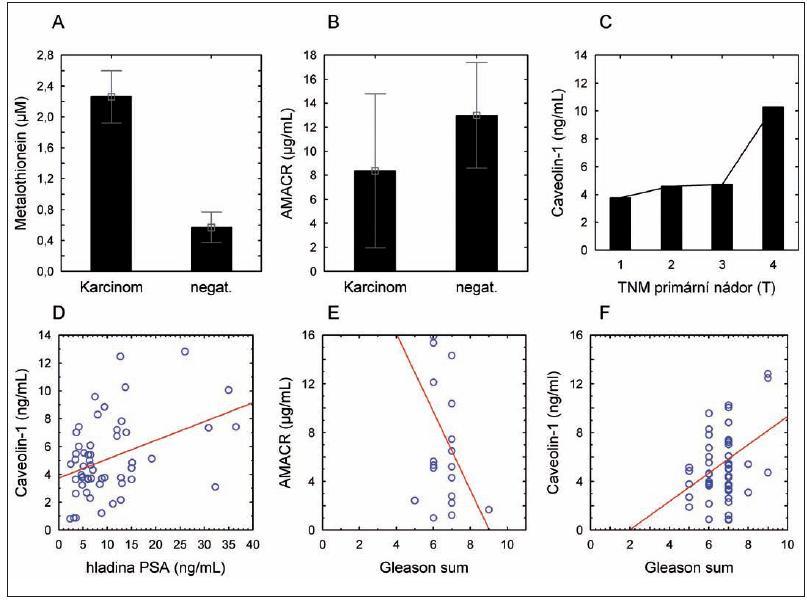Hladina nádorových markerů v séru pacientů. (A) – hladina metalothioneinu; (B) – hladina alfa metyl-Coa-racemázy (AMACR); (C) – hladina Caveolinu-1 v závislosti na stagingu onemocnění; (D) – závislost hladiny caveolinu-1 na hladině celkového PSA; (E) – závislost hladiny AMACR na Gleasonově skóre; (F) – závislost Caveolinu na Gleasonově skóre.
