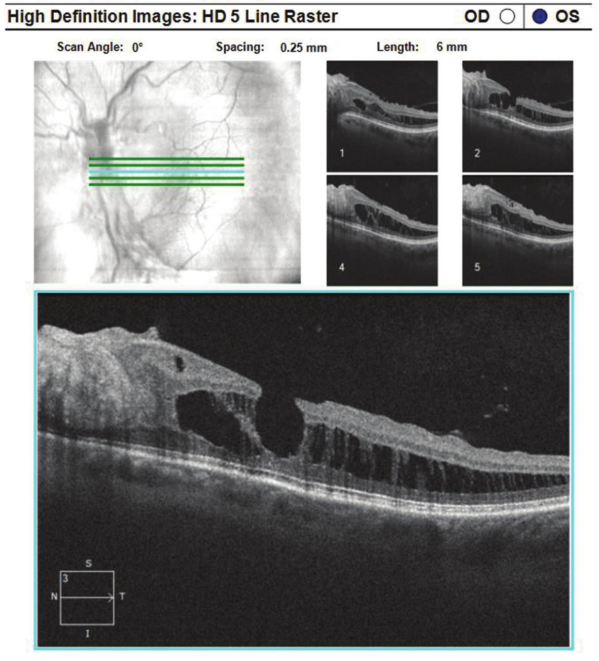 Optická koherenční tomografie levého oka: rozestup vrstev sítnice při dolní temporální arkádě s epiretinální fibrózou a defektem lamelárních vrstev sítnice