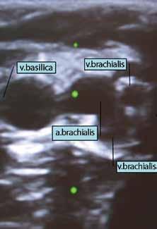 Ultrazvukový obraz cév paže. Vpravo a. brachialis se dvěma sousedícími vv. brachiales, vlevo v. basilica.