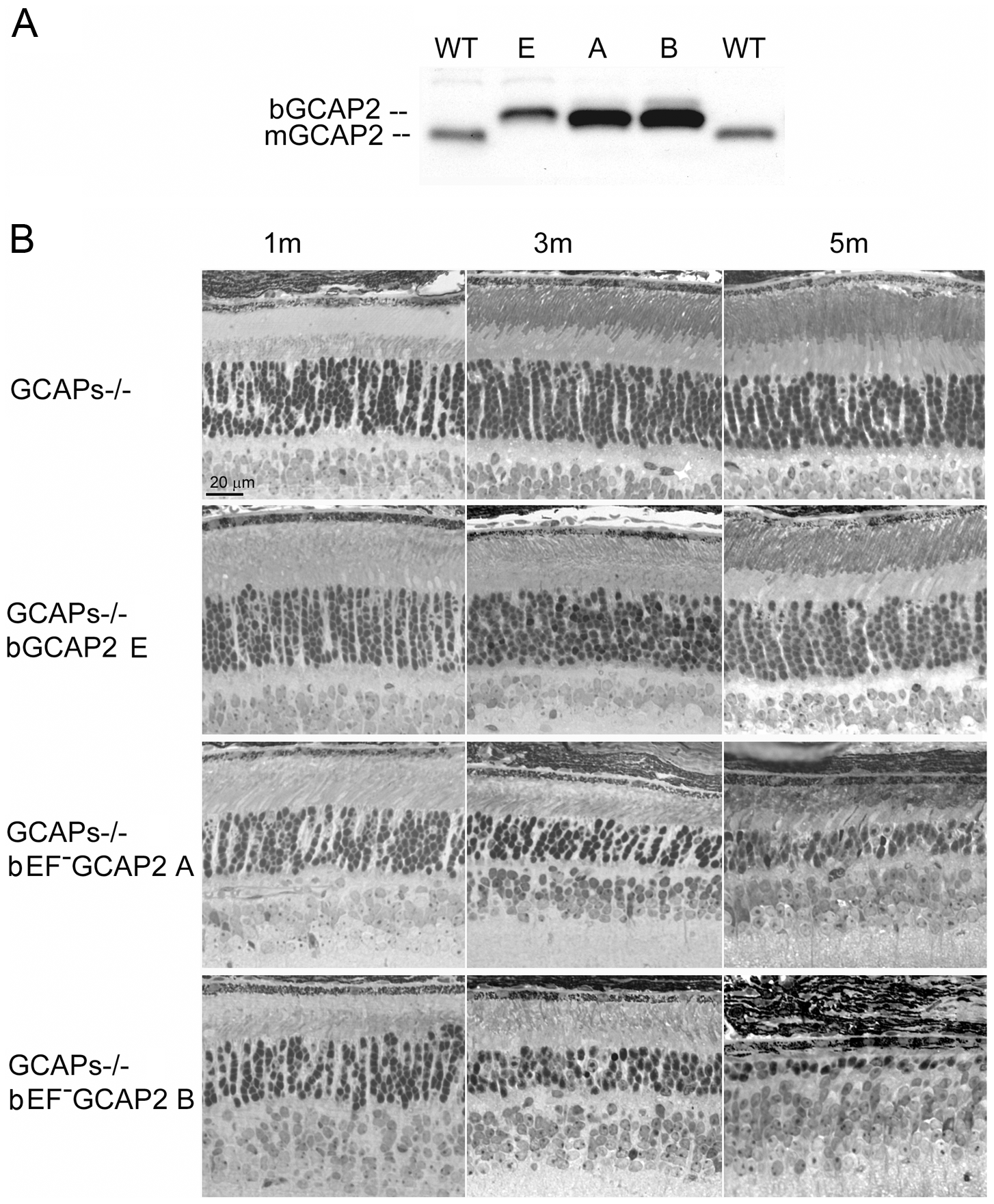 Transgenic expression and rate of retinal degeneration in the GCAPs−/− background.