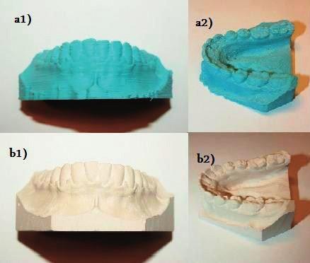 Srovnání a) tradičních sádrových modelů a b) modelů získaných 3D tiskem: frontální pohled a1) a b1) a pohled semi-okluzální a2) a b2)