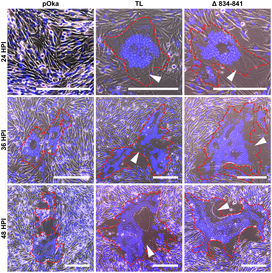 Truncation of the gHcyt causes exaggerated syncytia formation in VZV-infected melanoma cells.
