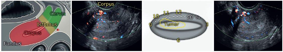 Ultrazvuková lokalizace místa nejhlubší invaze endometriálního nádoru do myometria
