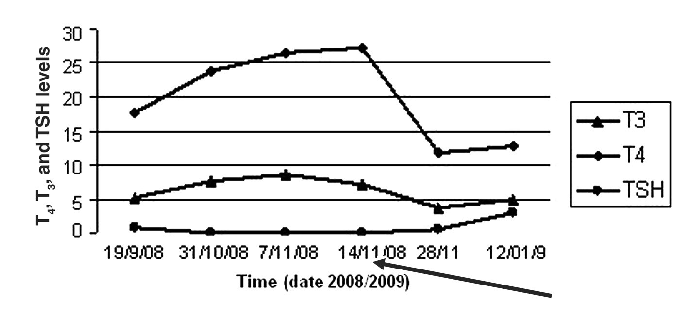 Fig. 3. Typical free T<sub>4</sub>, T<sub>3</sub>, and TSH profiles during the course of subacute thyroidistis, while the arrow indicates the date corticosteroid therapy started in the demonstrated case