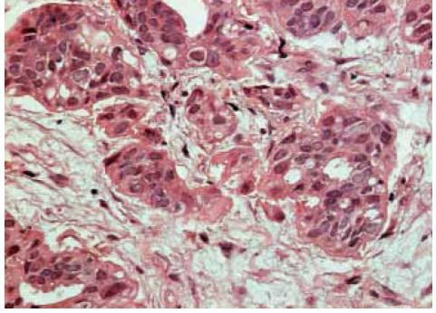 Invazivní duktální karcinom, HE, zvětšeno 40×