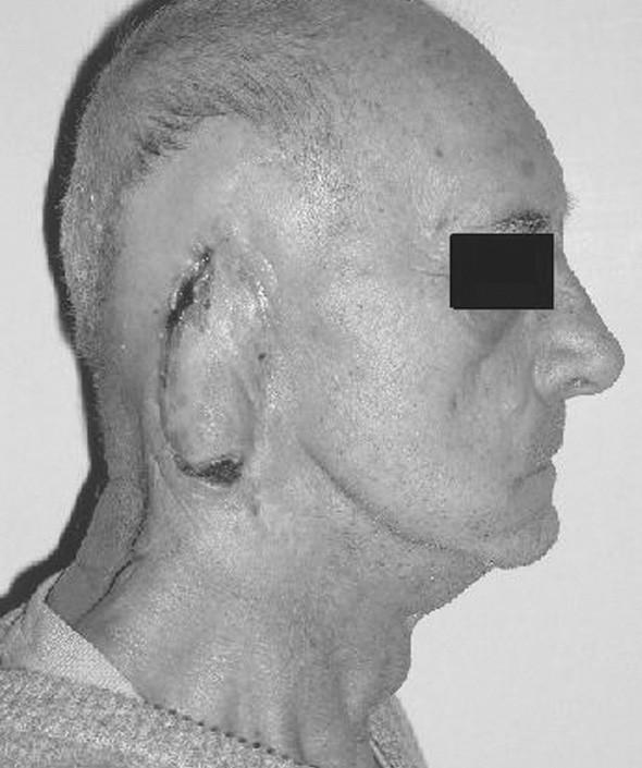 Pacient dva mesiace po operácii. Hemoragické krusty na okrajoch laloka s vitálnou spodinou.