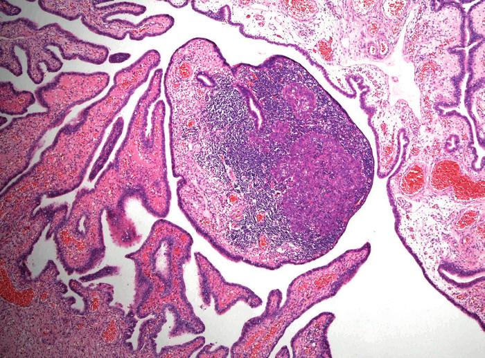 Drobné ložisko průměru 0,6 mm nízce diferencovaného (high-grade) serózního adenokarcinomu ve sliznici fimbriální části tuby jako náhodný mikroskopický nález u 40leté ženy se zárodečnou mutací genu BRCA1. V okolí nádorového ložiska je intenzivní zánětlivý infiltrát (hematoxylin-eozin, původní zvětšení 40×)