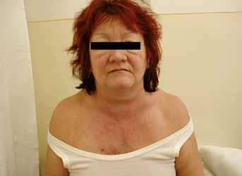 Obr. 3A. Foto pacientky z prípadu 2 pred podaním chemoterapie.
