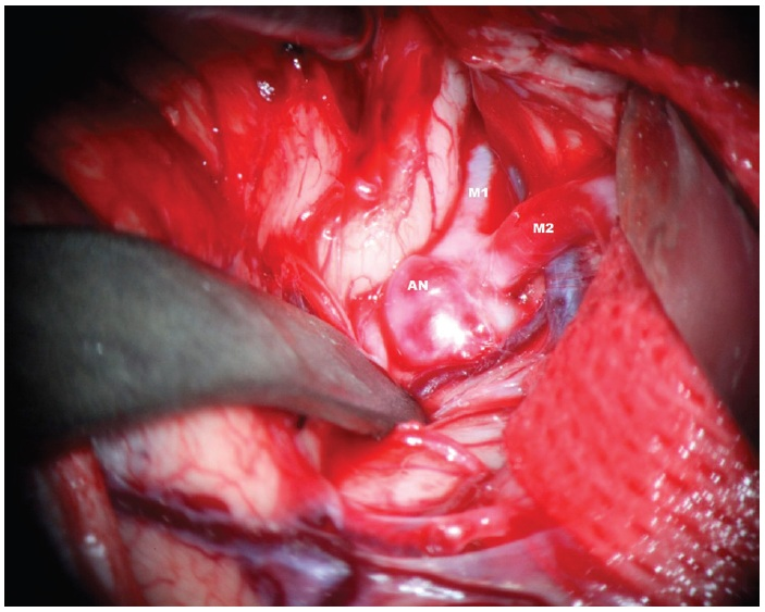 Disekce Sylvijské cisterny s patrným aneuryzmatem M1/2. AN – aneuryzma, M1 – kmen a. cerebri media. M2 – temporální větev bifurkace ACM Fig. 2: Dissection of the Sylvian fissure – obvious aneurysm of MCA bifurcation. AN – aneurysm, M1 trunk of MCA, M2 temporal branch of MCA