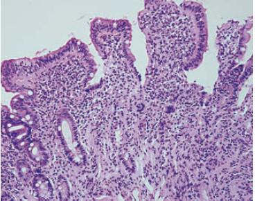 Výrazná kryptálna hyperplázia a mierna atrofia klkov (Marsh-Oberhuber 3a). Krypto-vilózny pomer je približne 1 : 1. Hematoxylín-eozín, x 200. Fig. 2. Significant crypt hyperplasia and mild villous atrophy (March-Oberhuber 3a). The crypt to villous ratio is about 1 : 1. Hematoxylin-eosin, x 200.