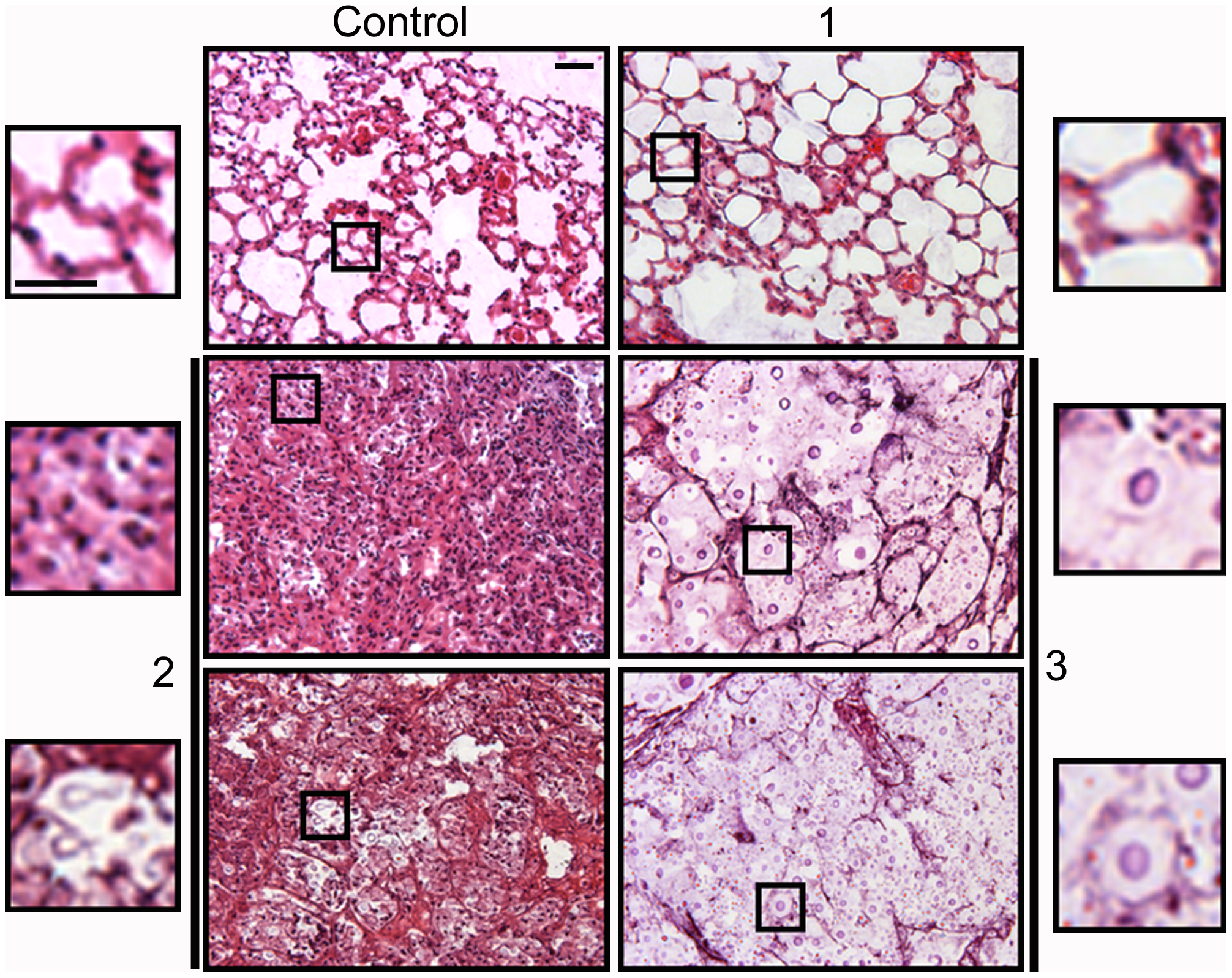 Histological sections of mice infected with different <i>C. neoformans inocula</i>.