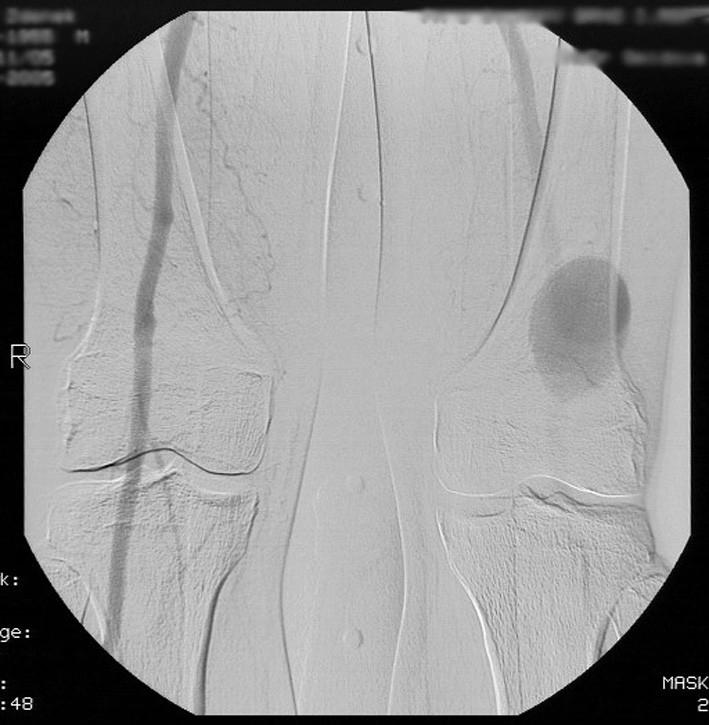 Peroperační RTG snímek implantovaného bifurkačního stentgraftu Zenith. Pic. 3. Intraoperative X-ray of implanted stent graft Zenith.