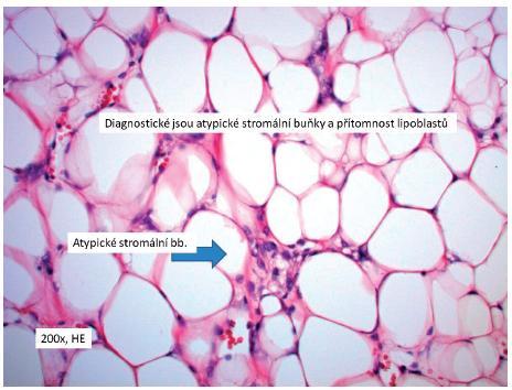 Diagnostické jsou atypické stromální buňky a přítomnost lipoblastů (200× HE) Fig. 3. Atypical stromal cells and presence of lipoblatomas are typical (200× HE)