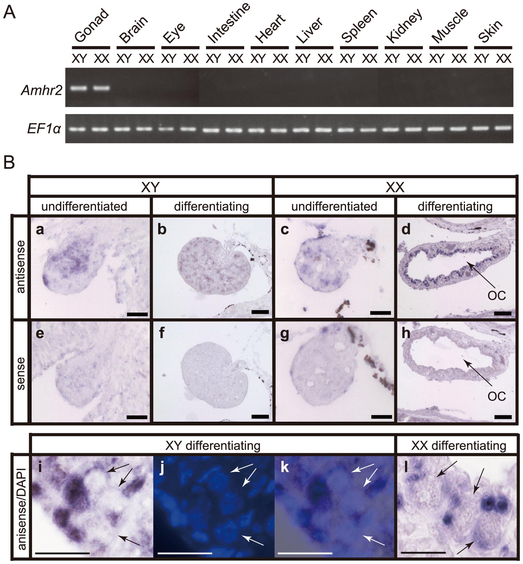 Expression pattern of <i>Amhr2</i> in fugu.