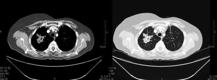 Kontrolní CT vyšetření plic po 3 měsících chemobioterapie v březnu 2010. Součet cílových lézí dle RECIST 65 mm (–23,5 %) splňující kritéria stabilizace nemoci (SD).