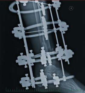 Obr. 8, 9: RTG po stabilizaci zlomeniny pomocí kruhové zevní fixace – MCD aparátem