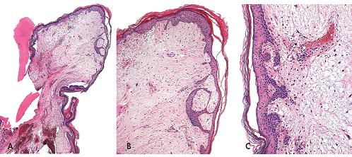 Kožní myxom polypovitého tvaru pocházející ze zevniho zvukovodu (A, zvětšení 20x) s nápadnými změnami epidermis nad ním ležící. Tyto změny mají podobu navzájem propojených pruhů epitelových buněk s periferním palisádováním (B, zvětšení 40x; C, zvětšeni 100x). Barveno hematoxylinem eozinem.