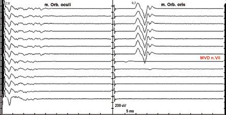 Ztráta nepřímé odpovědi při mikrovaskulární dekompresi n. VII. Stimulace r. zygomaticus, registrace m. orb. oculi (vlevo) a m. orb. oris (vpravo), jeden záznam každých 30 s. Normální CMAP m. orb. oculi při stimulaci r. zygomaticus. Abnormní CMAP konstantně výbavná před MVD. Po provedení MVD abnormní odpověď z m. orb. oris vymizela.