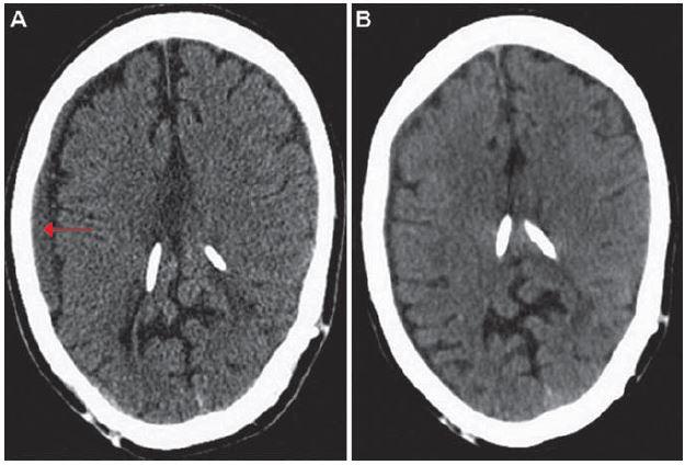 Výpočetní tomografie mozku, transverzální projekce.