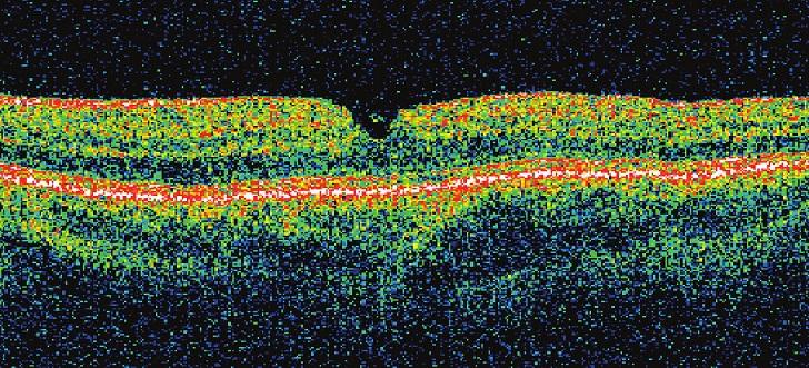 Pac. č. 1 – OCT po operácii, kde je zreteľne konfigurovaná centrálna oblasť sietnice. COZ sa veľmi rýchlo po operácii stabilizovala na 20/20