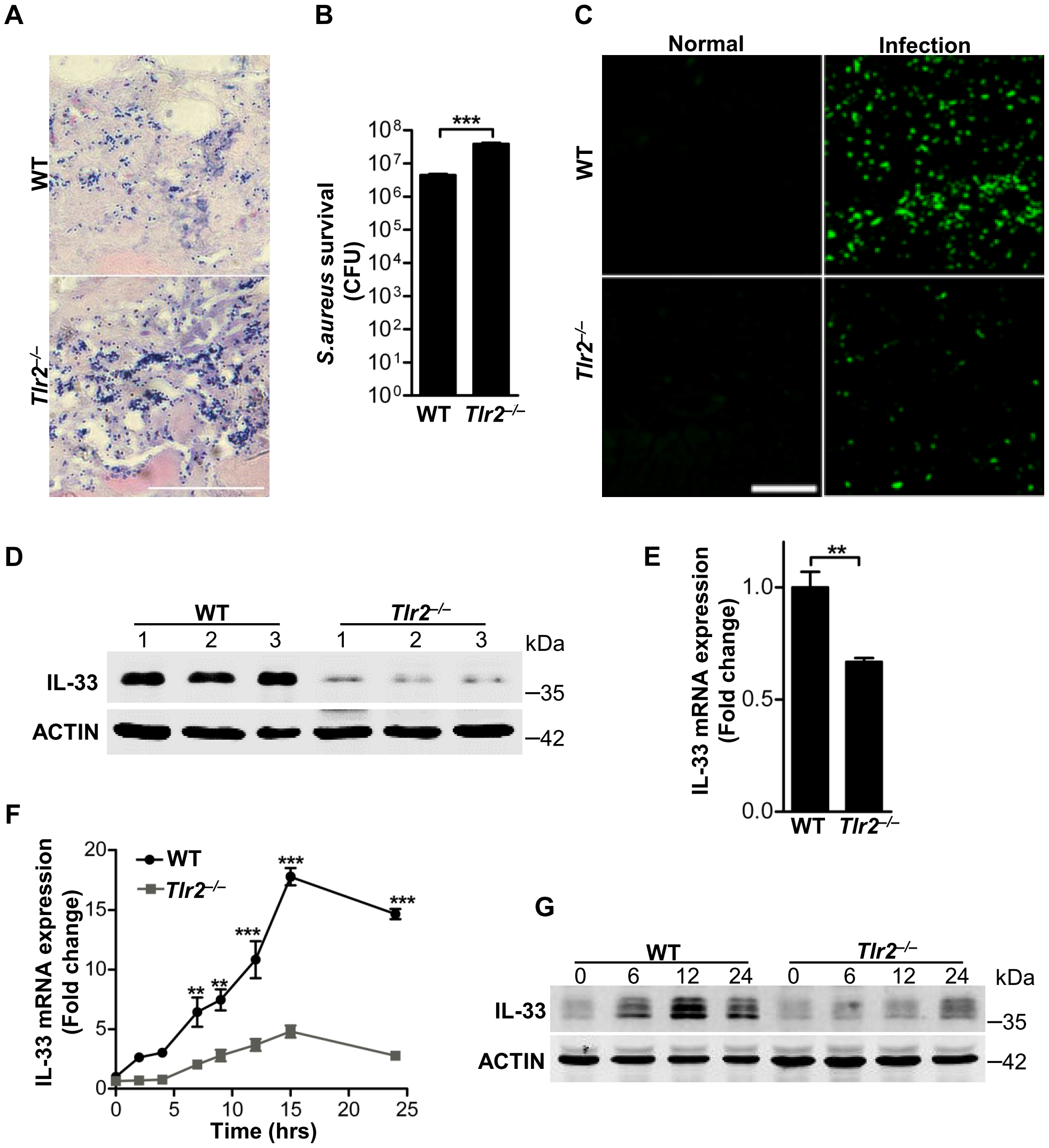 TLR2 is required for <i>Staphylococcus aureus</i> to induce IL-33.
