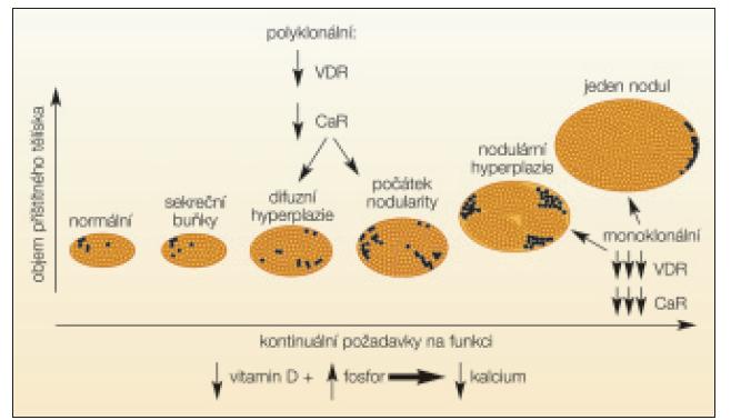 Schéma 2. Hyperplazie příštítných tělísek při chronickém selhání ledvin. Difuzní hyperplazie se mění na nodulární, počet receptorů pro vitamin D (VDR) a vápník (CaR) se snižuje [15].