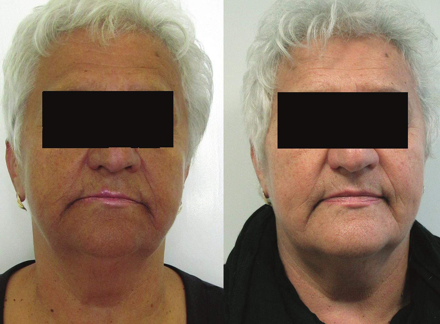 a, b. Před terapií (a) a po osmi měsících terapie (b)