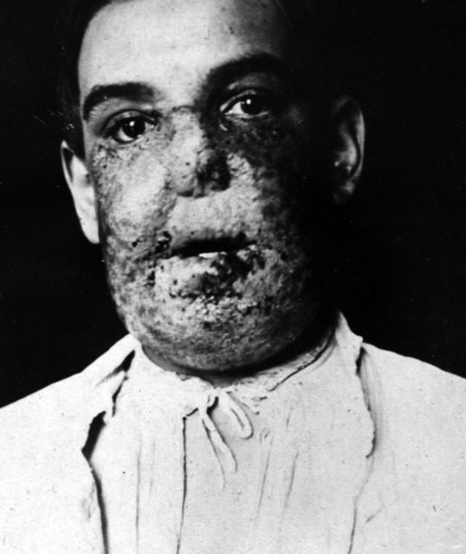 Lupus vulgaris – veliký medicínský problém své doby – vlastní archiv A. Trýba.
