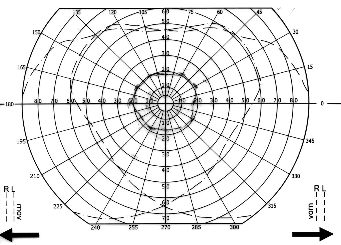 Obr. 3. Perimetr před léčbou. a) pravé oko b) levé oko