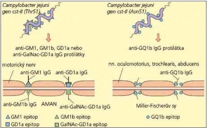 Schéma rozvoje GBS nebo MFS podle typu protilátek (upraveno podle [5]). Při infekci Campylobacterem jejuni a produkci protilátek anti-GM1, GM1b, GD1a nebo GalNAc-GD1a dochází k postižení periferních motorických nervů, které obsahují obdobné epitopy a rozvíjí se axonální forma GBS (AMAN). Při produkci anti-GQ1b protilátek se rozvíjí MFS, protože GQ1b epitopy jsou hustě lokalizovány jen na okohybných nervech.
