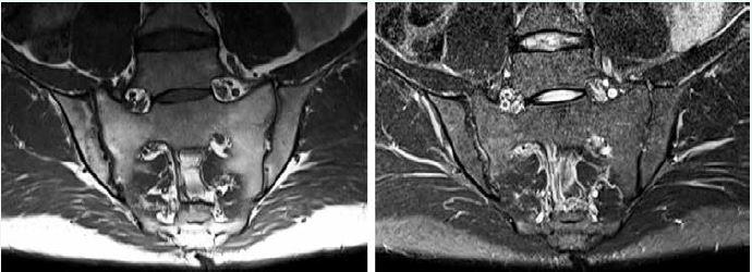 MRI sekvencie pre zobrazenie sakroiliakálnych kĺbov. Vľavo T1-vážený obraz (T1W, T1 tse) senzitívny pre tuk, vpravo STIR sekvencia senzitívna pre tekutinu. Archív autora