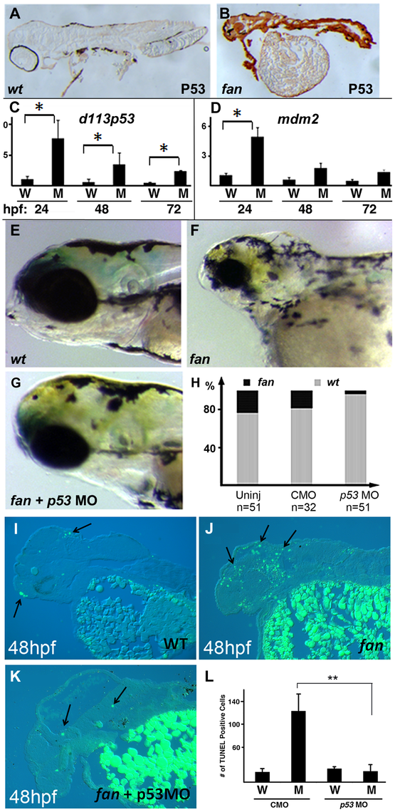 Inhibition of p53 signaling can partially rescue <i>fan</i> mutant craniofacial defects.