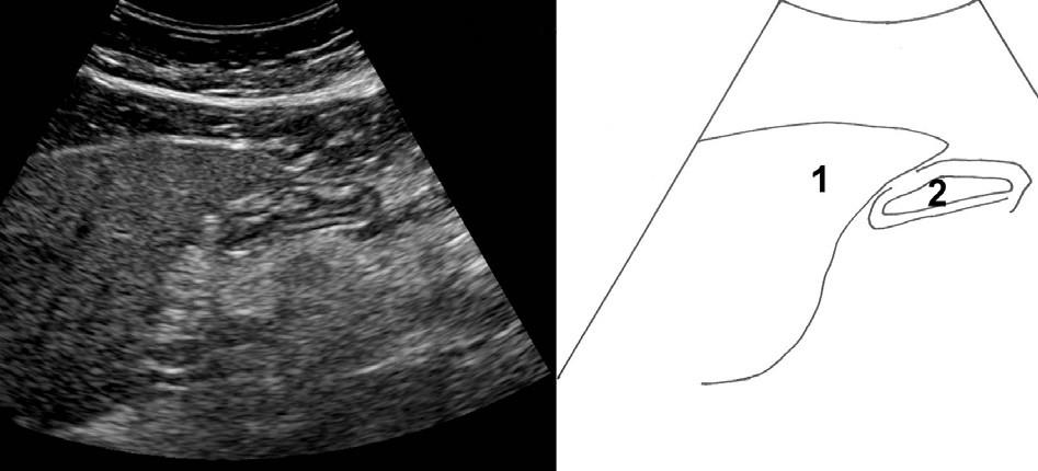 Příčný řez epigastriem mírně vlevo od střední čáry. 1 – levý lalok jater, 2 – žaludek