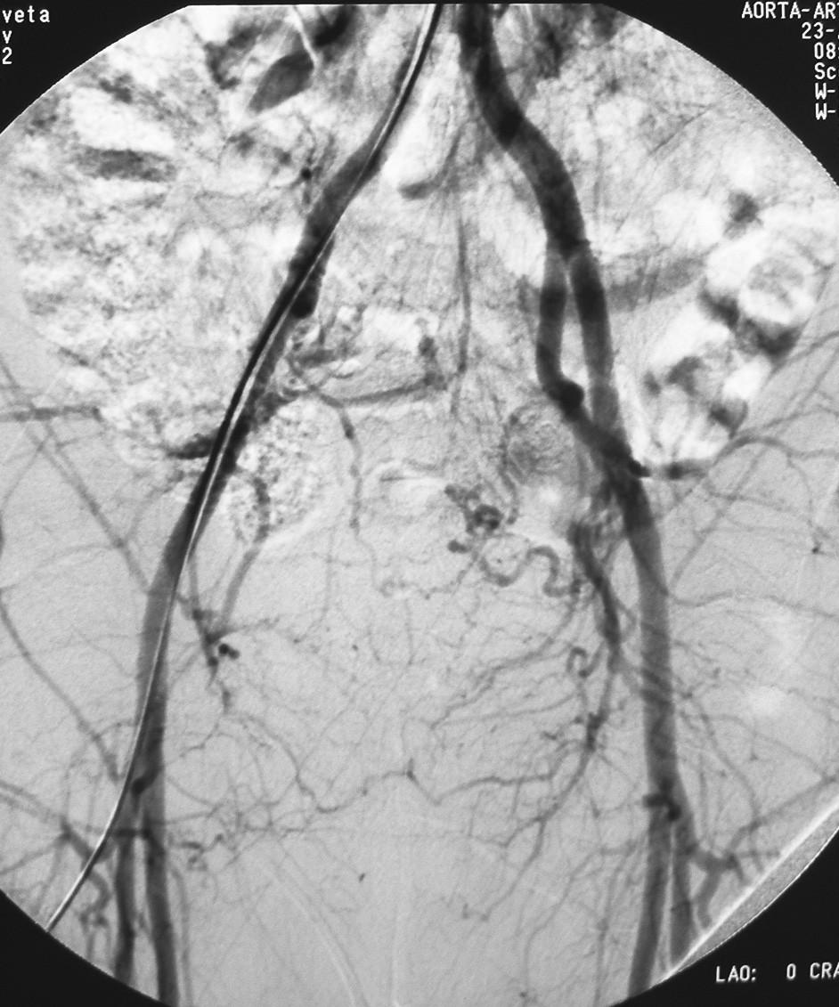 Pacient č. 2. Kontrolné angiografické vyšetrenie 3 mesiace po operácii Pic. 5. Patient Nr. 2: Control angiography 3 months following the procedure
