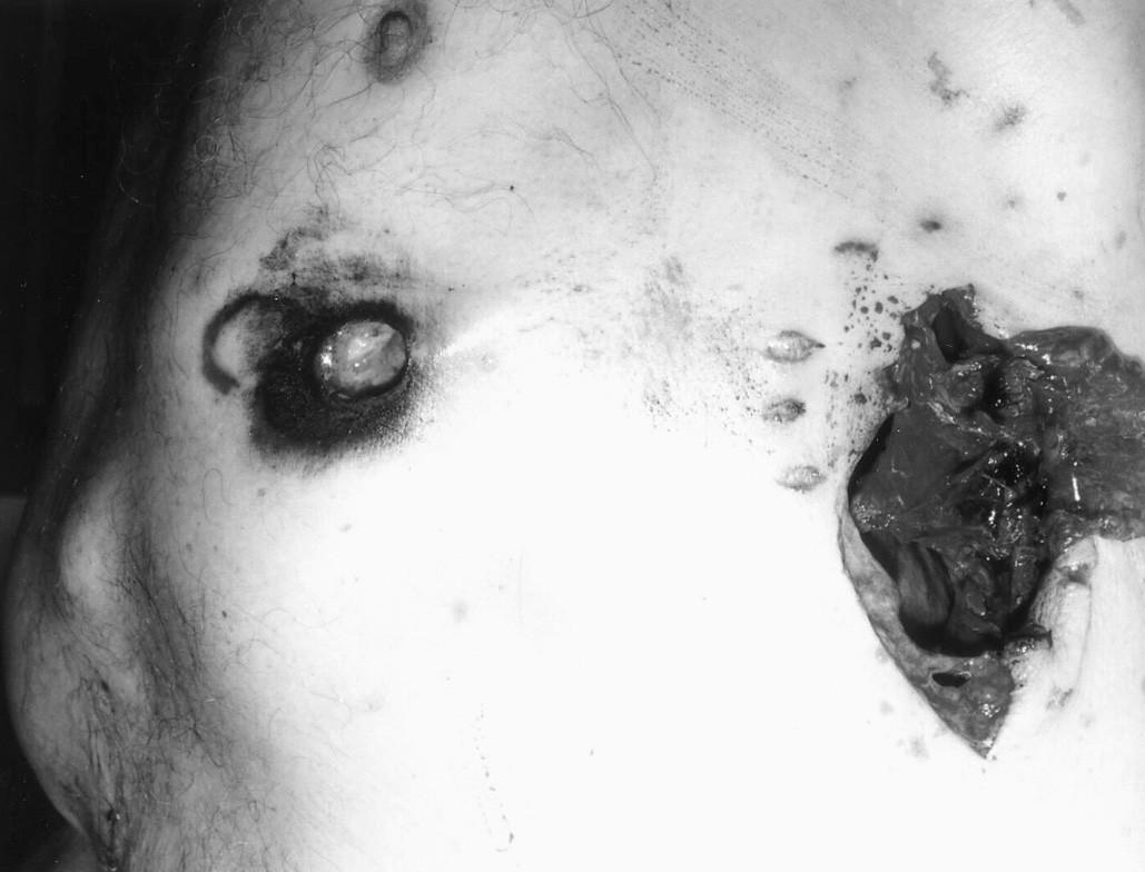 Sebevražda brokovnicí (ráž 12 x 70) – průstřel trupu při střelbě z absolutní blízkosti