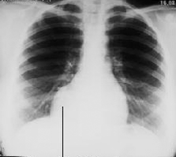RTG parakardiální cysty vpravo Fig. 9. An x- ray view of a paracardial cyst on the right