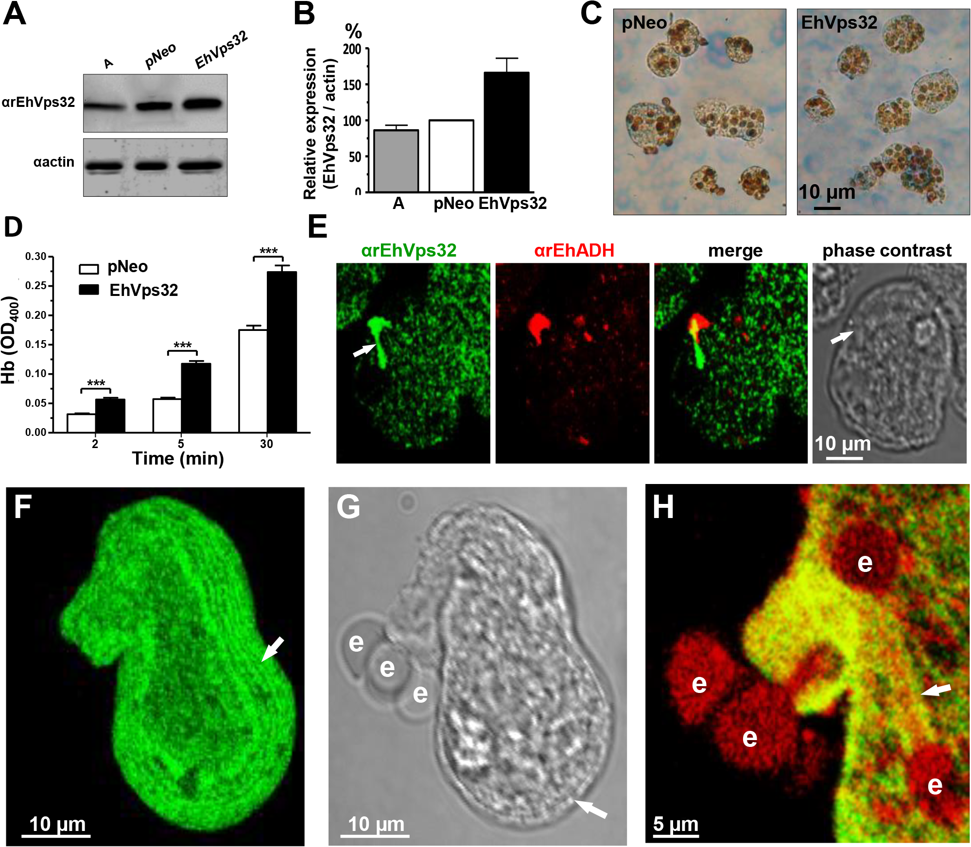 Expression and localization of EhVps32 and rate of erythrophagocytosis in <i>pNeoEhvps32-HA</i> transfected trophozoites.