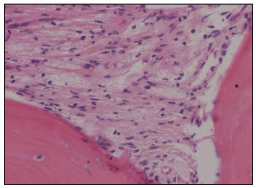 Histologické hodnocení válečku kostní dřeně. Barvení hematoxylin-eozin, zvětšení 200krát. Pěnité a vřetenité histiocyty nahrazují hemopoetické buňky kostní dřeně.