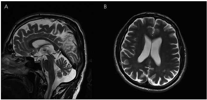 Magnetická rezonance mozku pacienta IV-4. Atrofie mozku, megacisterna magna, průchodný mokovod a normální kmenové struktury v T2 vážených obrazech – rok 2008 (A) sagitální řezy (B) transverzální řezy.