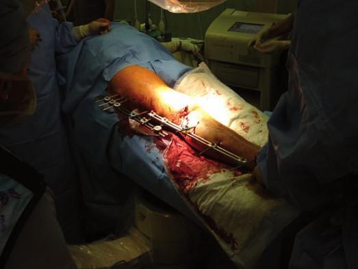 Ipsilaterální zlomenina femuru a bérce v tomto případě PDK ošetřena kombinací dvou unilaterálních fixátorů