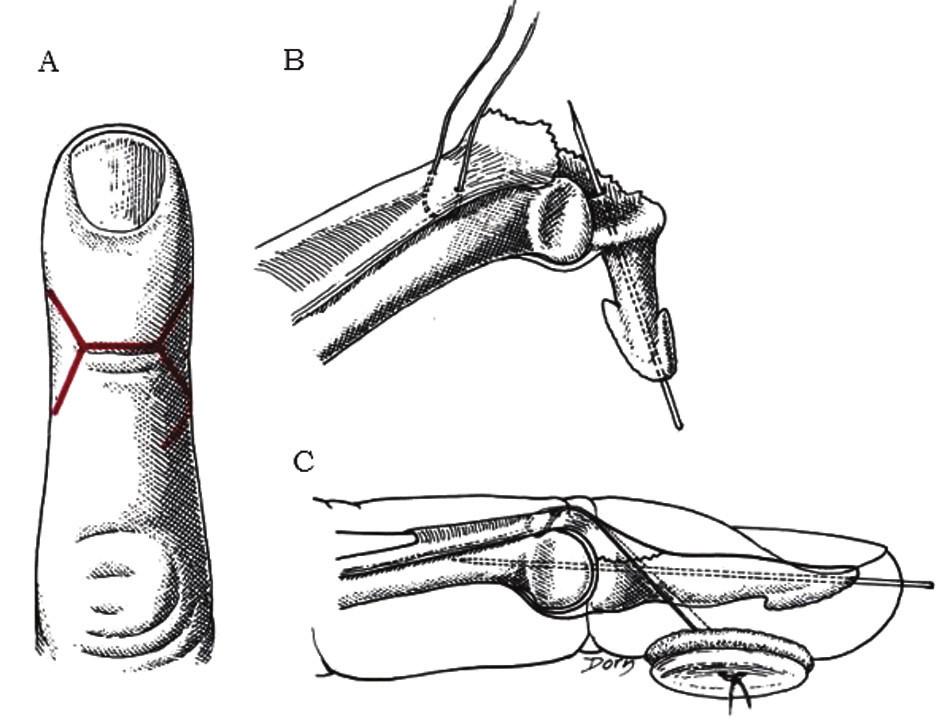 Otvorená metóda redukcie mallet deformity a) dorzálna transverzálna incízia s prolongáciou tvaru V na okrajoch na dvihnutie 4 lalokov, b) naloženie Blalockovej sutúry, ktorá vytvára U tvar v hĺbke šľachy pri okraji avulzného fragmentu; zavedený obojstranne zaostrený Kirschnerov drôt anterográdne do distálneho článku c) fragment je reponovaný, Kirschnerov drôt zavedený proximálne cez DIP, sutúra uviazaná cez gombík na konci procedúry zviera 45° uhol s DIP kĺbom [2]. Fig. 4: Open reduction of a mallet finger with fracture a) dorsal transverse incision with V-shaped prolongation at the edges to allow four skin flaps to be raised, b) providing Blalock suture, which makes an U-shape under the deep surface of the tendon at the edge of the avulsed fragment; a double-ended K-wire is drilled anterogradely into the distal phalanx, c) reposition of the fragment, the K-wire is driven proximally through DIP joint, suture is tied through the button and makes a 45˚ angle with the DIP joint [2].