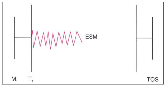 """Auskultační nález u Ebsteinovy anomálie komplikované trikuspidální regurgitací. Opožděný zvuk trikuspidálního uzávěru má obvykle """"vrzavou"""" kvalitu (zvuk plachty)."""