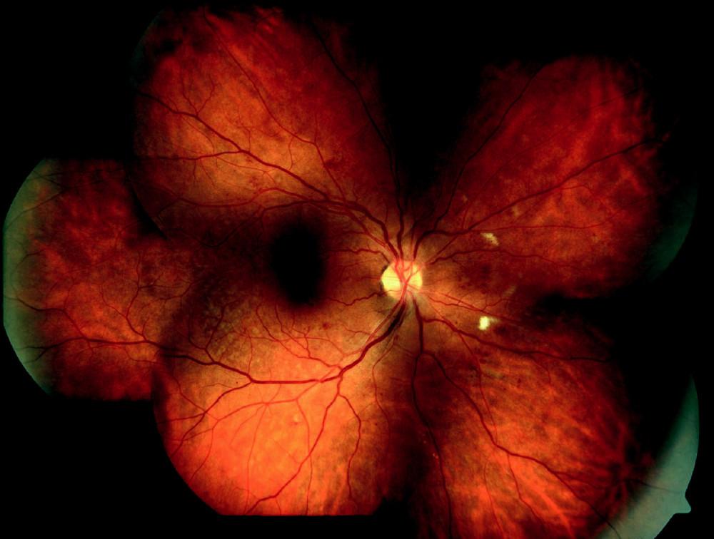 Středně pokročilá forma neproliferativní diabetické retinopatie
