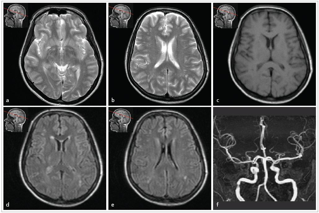 23letá pacientka s migrénou bez aury s frekvencí záchvatů 3krát měsíčně, vyšetřena těsně před těhotenstvím. 1,5T MRI vyšetření mozku: a, b) T2 vážený obraz modu TSE c) T1 vážený obraz modu TSE d, e) FLAIR, transverzální řezy f) MRI angiografie mozkových tepen, MIP rekonstrukce V T2 vážených obrazech (obr. a) jsou rozšířené Virchowovy-Robinovy prostory v hloubi hemisfér. V bílé hmotě obou hemisfér, převážně subkortikálně, jsou drobné ložiskové hyperintenzity v T2 vážených obrazech a FLAIR (obr. b, d, e), bez korelátu v T1 vážených obrazech (obr. c). Normální MRA.