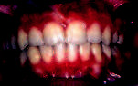Obr. 6b. Intraorální pohled po sejmutí pevného ortodontického aparátu.
