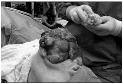 Sarkom jazyka (jiný pohled na nádor v průběhu operace)